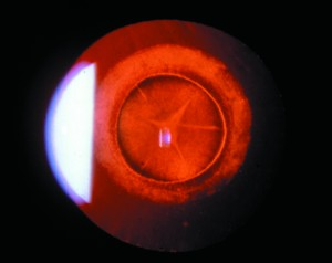 Image of juvenile cataract in eye of pediatric patient