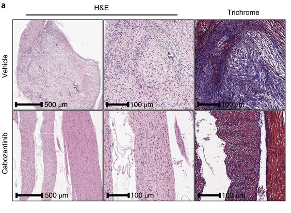 NF Clinical Trials Consortium Identifies a New Therapy for Plexiform Neurofibromas